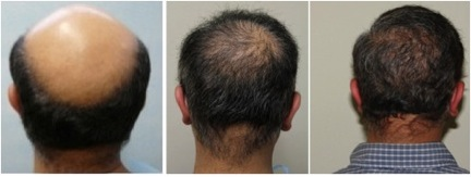 Body Hair Transplant Bht With Ugraft Now Allows Hair
