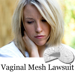Bladder Mesh Lawsuits Alleging Serious Injuries, Including Vaginal Scarring, Bleeding And Mesh Erosion, Due To Bladder Mesh Products Move Forward