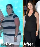 Gastric Sleeve Surgery San Antonio Success Story for TBS