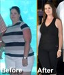 Dr. Nilesh A. Patel's Extraordinary Gastric Sleeve Helps Patient Finally Lose Baby Weight