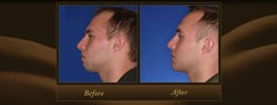 Orange County Chin Augmentation