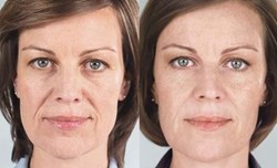 sculptra in westchester ny before and after