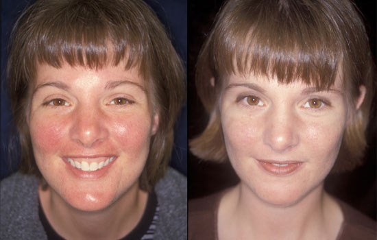 Interesting. Rosacea facial cream