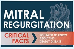 Infographic about Mitral Valve Regurgitation