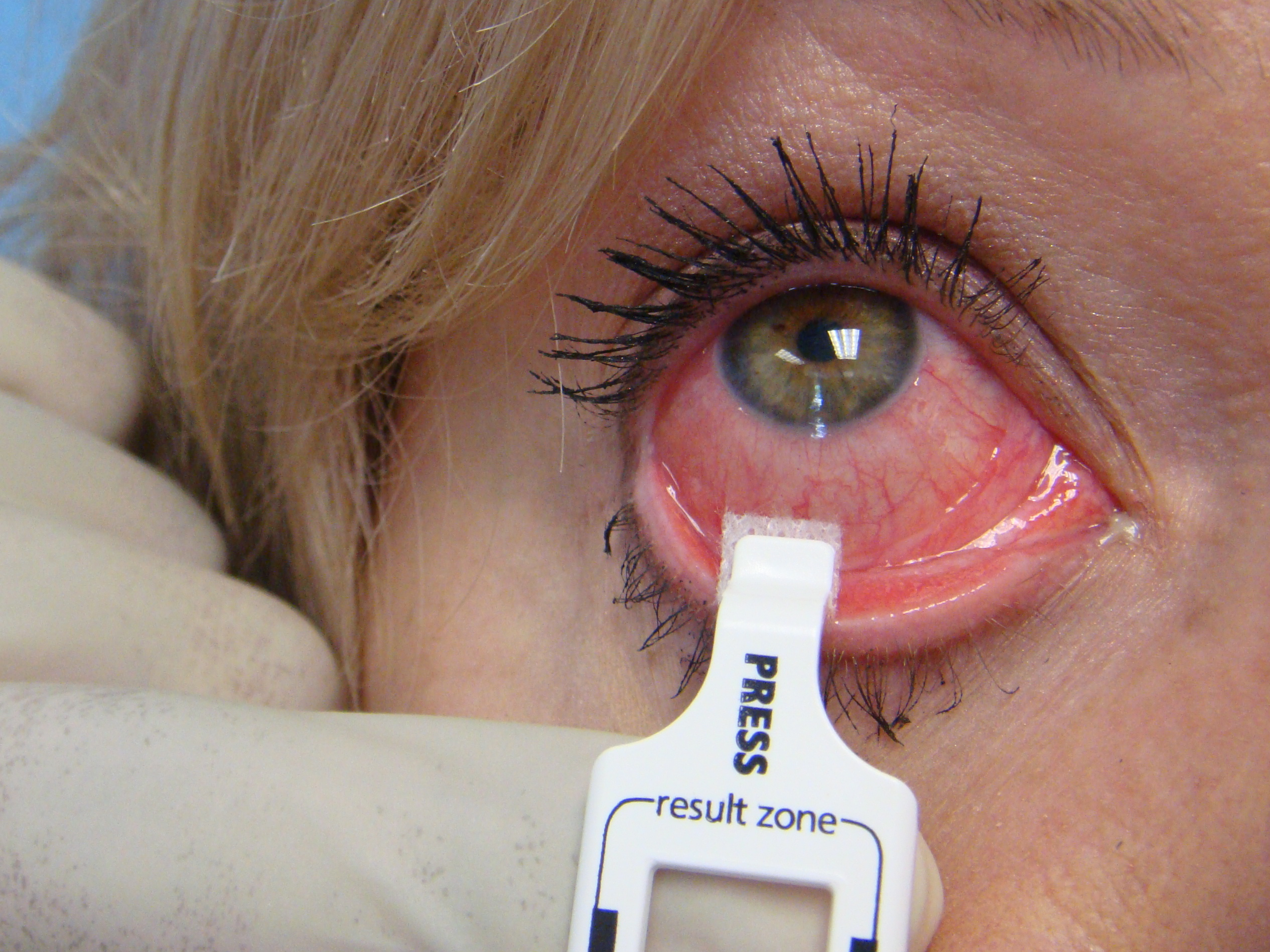 Home Care For Viral Conjunctivitis