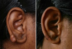 Keloid Treatment Before and After