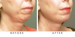 fat transfer to face, face fillers, face lift, facial rejuvenation, myshape lipo, fat transfer, trevor schmidt