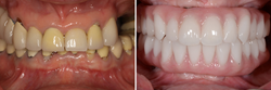 Dr. Saj Jivraj and Dr. Mamaly Reshad of Anacapa Dental Art Institute can provide patients fixed, permanent dentures in 60 minutes – instead of months and multiple surgeries – thanks to the Teeth-in-an-Hour™ miracle process.