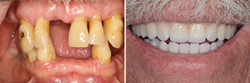 The Anacapa Dental Art Institute's world-class in-house laboratory can make permanent crowns, porcelain veneers, gold or porcelain fillings, and dentures. The technician can also perform denture repairs, such as replacing lost or damaged teeth.
