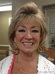 Dr. Victoria Dillingham, DDS (San Ramon dentist)