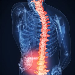 Intervertebral Differential Dynamics for back pain and neck pain