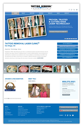 Tattoo Removal Laser Clinic Website