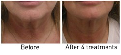 After 4 treatments on the neck with Hybrid Energy visual improvement