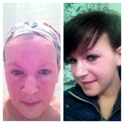 UK woman heals from topical steroid addiction