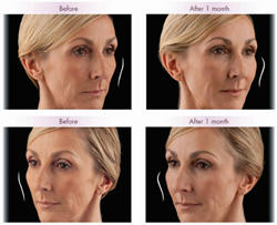 juvederm volume before and after denver co