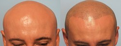 Before and After Scalp Micro Pigmentation