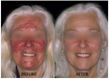 anti-aging,acne,adult acne, wrinkle treatment,hyperpigmentation,fine lines,