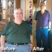 Gastric Bypass Surgery Austin TBS Patient Yeamans