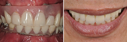 Full mouth reconstruction is all about creating beautiful and healthy mouths. Reconstructive dentistry includes anything that restores damaged or missing teeth, tissues and bones.