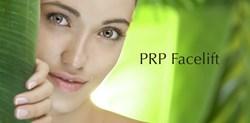 PRP facelift phoenix