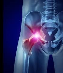 ASR Pinnacle Hip Implant: serious complications