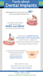 Louisville Dentists Says Denture Wearers Can Have Permanent Teeth Again
