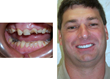 Extraction Isn't the Only Choice to Repair A Broken Tooth, New Albany...