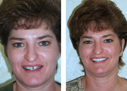 Dr. Ronald Receveur, provides services including all on four dental implants, all on six dental implants, dental mini implants, full mouth dental implants, teeth in a day, teeth in an hour, IV sedation, and teeth whitening and other Aesthetic dentistry.