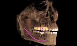 Dr. Ronald Receveur recently installed the Sirona Galileos 3D Dental Imaging System, which offers computerized axial tomography (CAT) scans of the jaw and mouth.