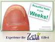 Special Packages of Zeta Clear Nail Fungus Treatment System Released