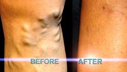 Dr. David Greuner No-Knife™ varicose vein results