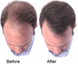 Provillus Hair Regrowth Treatment is Now Available with A Special...