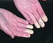 This is what the fingers of one with Raynauds Syndrome look like most of the day.