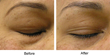 The Beauty Spot | HydraFacials, Skin Resurfacing Treatments | Boulder CO