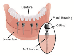 Mini dental implants ensure dentures are tight and secure.