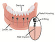 Louisville Cosmetic Family Dentist Urges Patients to Consider Quick Mini-Implant Dentures