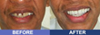 Louisville Cosmetic Dentist Offers Non-Invasive Solution to...