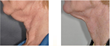 Exilis Tighten skin neck