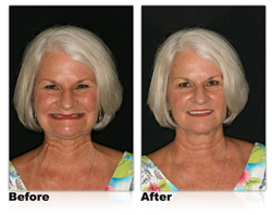 Dr. Ronald Receveur is now offering Louisville, Ky., and Southern Indiana residents dentures that give you a more youthful appearance.