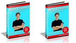 beat eczema cream