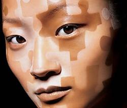 Natural Vitiligo Tratment System