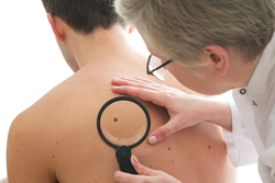 Screening for skin cancer is important in the early recognition and diagnosis of the disease, still on the rise.
