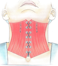 Corset Neck Lift Procedure