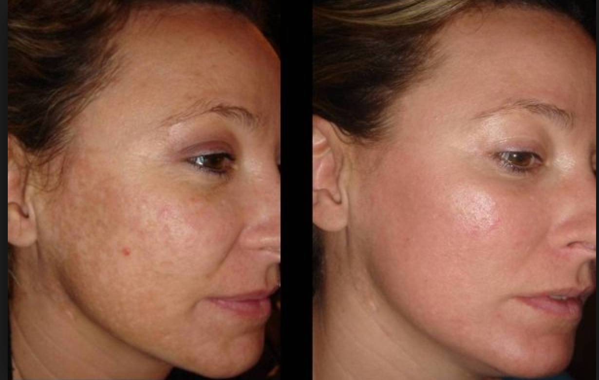 Ethos Spa Skin And Laser Centers Now Offering Advanced