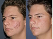 acne scarring, fraxel restore, fraxel,anti-aging treatments,scar removal