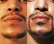 """Before"" and 24hrs ""After"" beard/mustache transplantation"