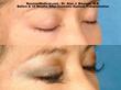 Eyelash Transplant