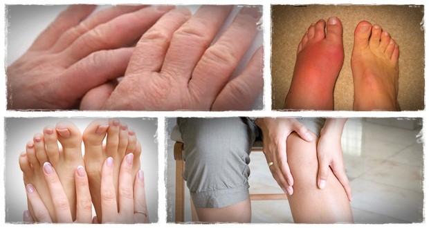 how to get rid of gout pain naturally