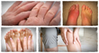how to get rid of gout the gout remedy report