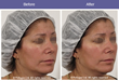 VoluDerm Technology: Wrinkle reduction & skin tightening Courtesy of Dr. Ayelet Nidam - Tel Aviv, Israel